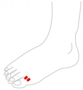 ツボ76扁桃腺(へんとうせん)