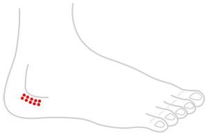 ツボ138股関節